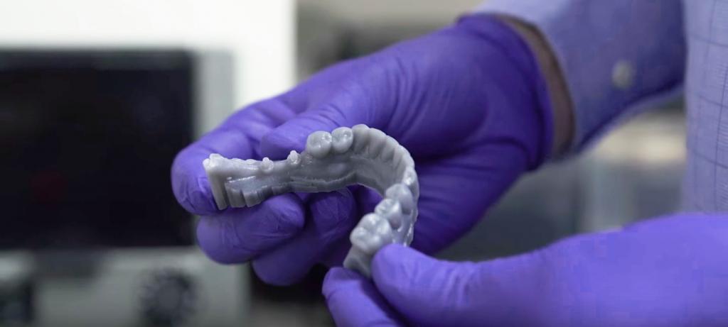 impressão 3D no setor odontológico molde 3D
